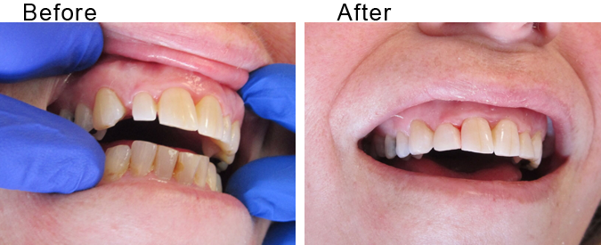Invisalign beforea and after by Divine Dental Center in Yorkton, SK