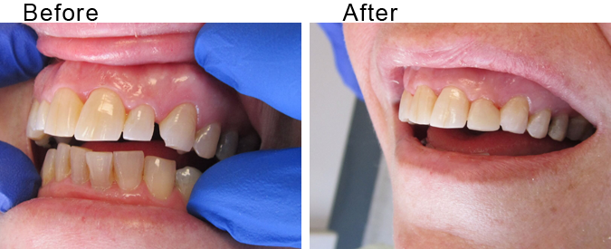 Bridge veneer before and after by Divine Dental Center in Yorkton, SK