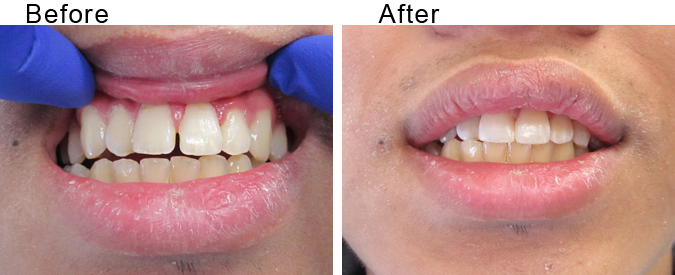 Tooth implant before and after by Divine Dental Center in Yorkton, SK