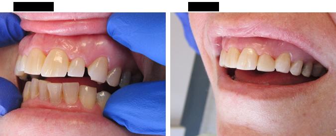 Bridge veneer before and after by Divine Dental Center in Yorkton, SK