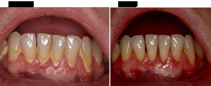Dental Bonding by Divine Dental Center in Yorkton, SK